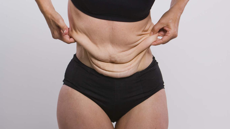 Похудеть - это еще не все: фото Лекси Рид, сбросившей 140 кг!