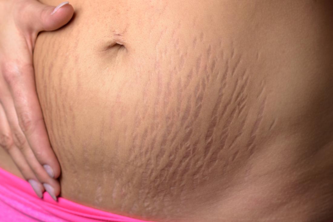 Растяжки после похудения: как убрать стрии на теле