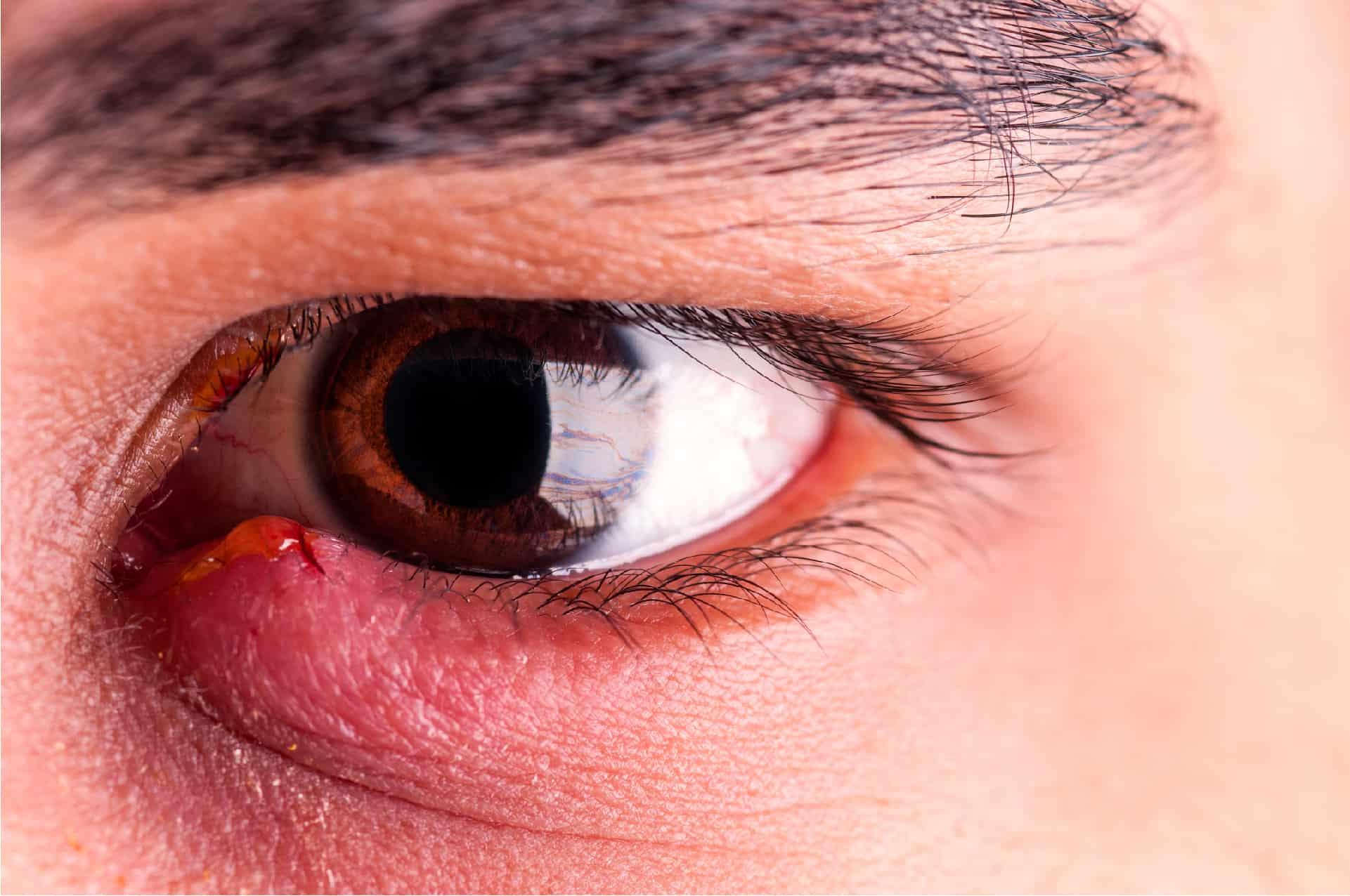 Ячмень на глазу – старинные приметы